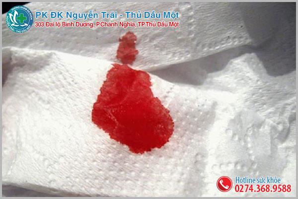 Đại tiện ra máu tươi thấm vào giấy, chảy thành giọt hay thành tia