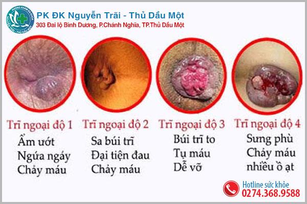 Đi cầu ra máu tươi có thể là hiện tượng của bệnh trĩ nội và trĩ ngoại