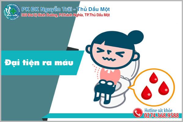 Đại tiện ra máu là dấu hiệu của bệnh trĩ hỗn hợp