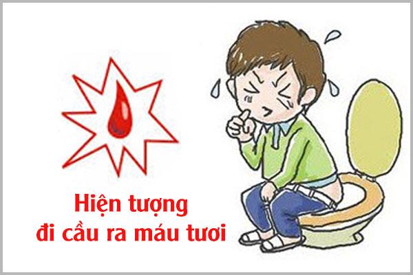Hiện tượng đi cầu ra máu tươi cảnh báo điều gì?