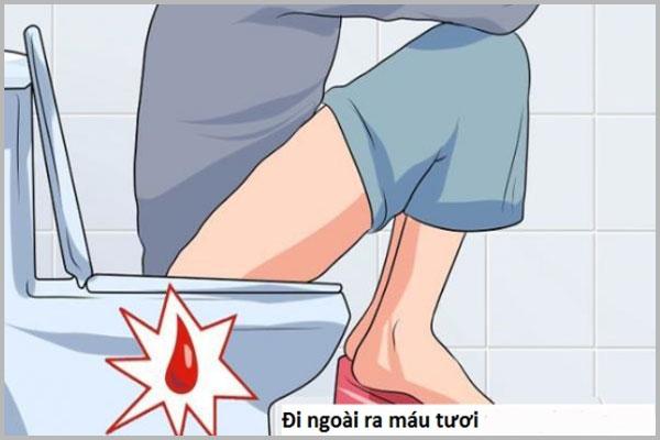 Những nguyên nhân đi cầu ra máu tươi cần lưu ý