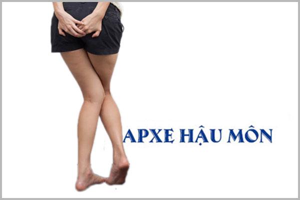 Thông tin về bệnh apxe cạnh hậu môn